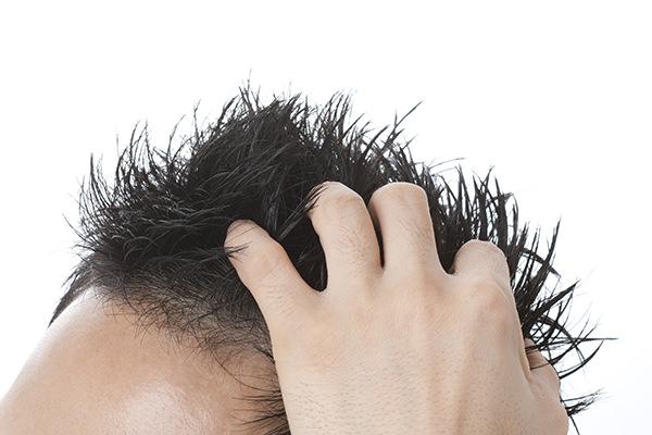 毛 が 生える プロペシア